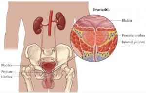 chronic prostatitis pelvic pain osteopathy