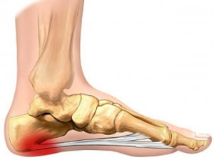 plantar fasciitis osteopathy treatment