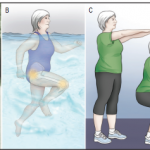 Exercise Is Essential for Osteoarthritis